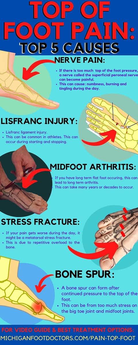 dorsal foot pain treatment