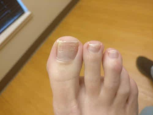 Keratin granulations after removing toenail polish.
