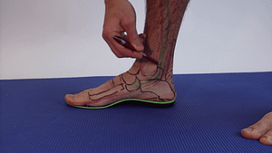 Posterior tibal tendonitis flat foot treatment