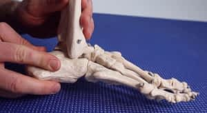 Subtalar joint vs Ankle overpronation