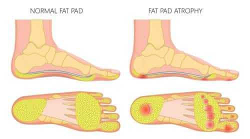 Fat pad atrophy heel pain plantar fasciitis 2