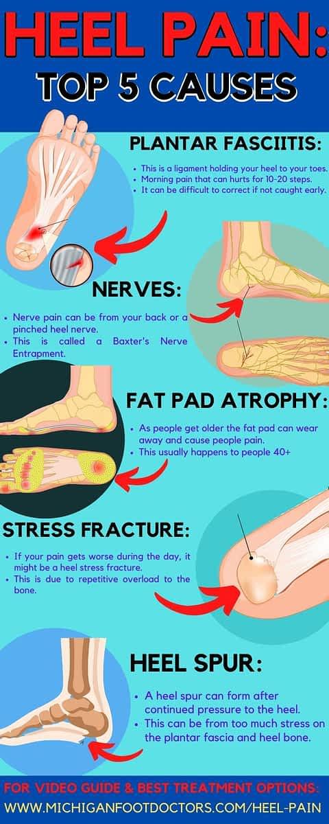 plantar fasciitis heel spur stress fracture