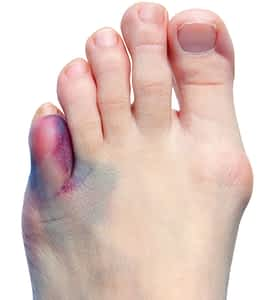 Left 5th toe pinky fracture.