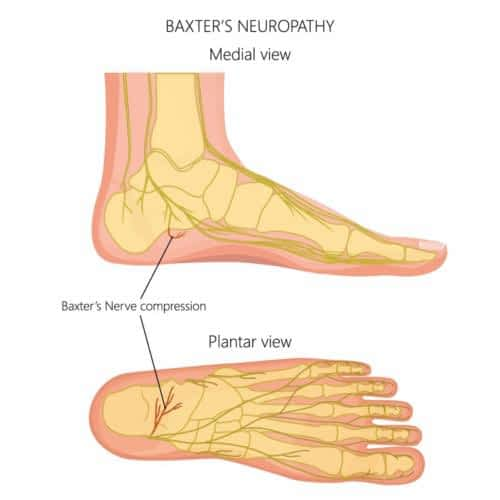 Baxter's nerve entrapment pinched nerve heel pain