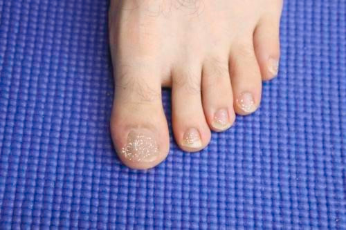 White Chalky toenails after removing toenail polish.