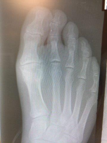 hallux rigidus big toe joint arthritis