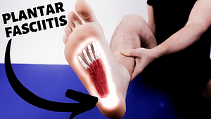 calcaneus foot pain plantar fasciitis