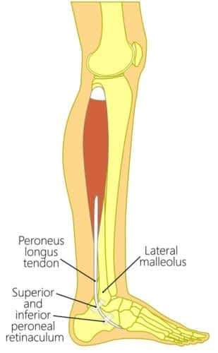 Peroneus Longus Tendonitis Treatment