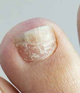 How To Heal Toenail & Foot Fungus at Home: Best Treatment