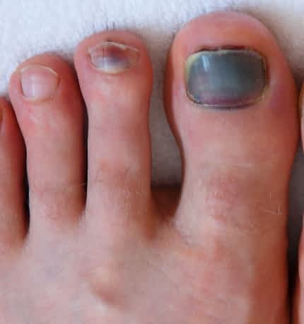 Human male foots with bruised black on toe nails on white background .