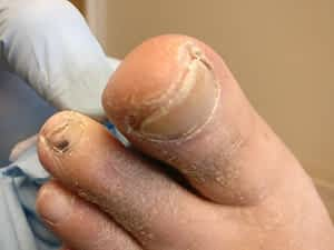 Ingrown toenail to the big toe post resection
