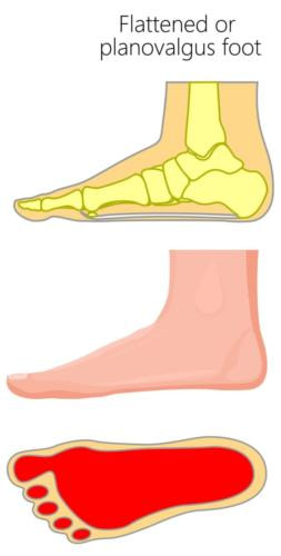 Flat foot overpronation heel pain