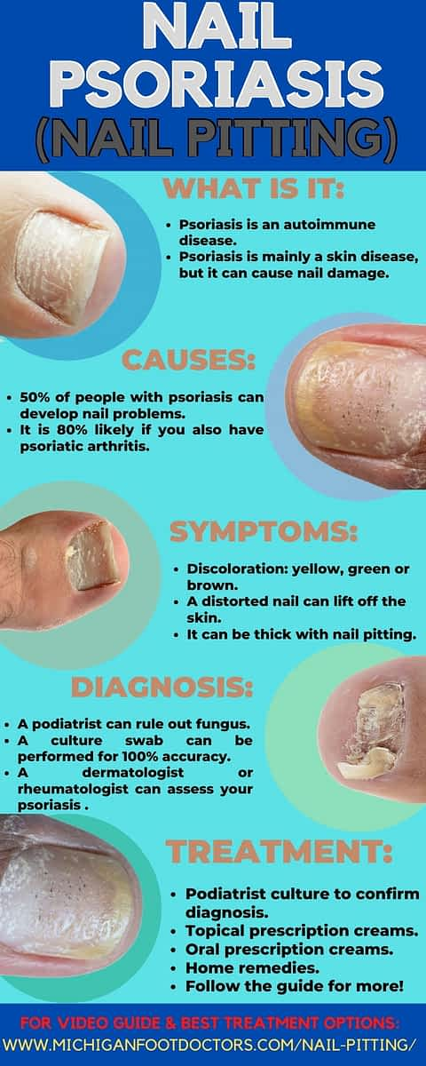 nail pitting psoriasis causes nail pits causes