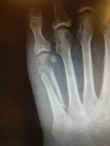 5th metatarsal fracture oblique midshaft