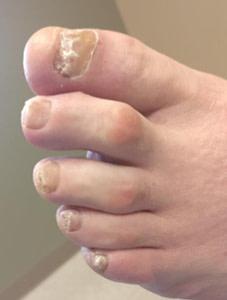 Is toenail fungus contagious?