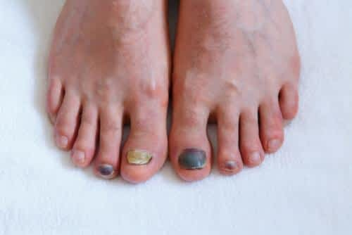 Black toenail hematoma. The right great toenail is lifting.