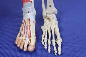 High Ankle Sprain Syndesmosis tear recovery time