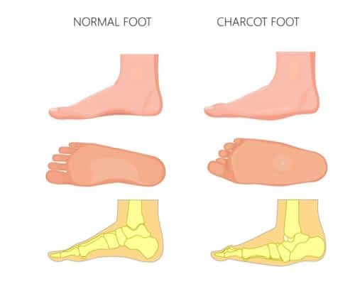 Charcot Athropathy Midfoot fracture or collapse