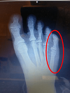 Sprained Pinky Toe Pain or Broken Pinky Toe? Best Treatment 2019