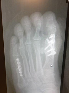 Big Toe Joint Fusion Recovery Time