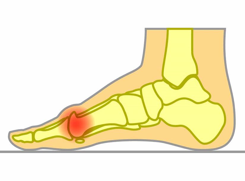 bone spurs big toe
