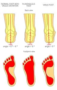 Podiatrist Heel Pain Treatment