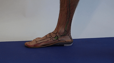 Posterior tibialist tendon flat foot changes