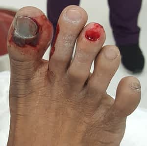 Right great toe fracture and right 3rd toe fracture.