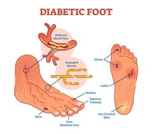 Diabetic foot management podiatrist in Michigan