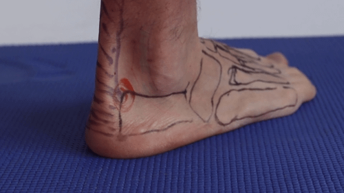 Heel insertion achilles tendon