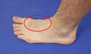 Pain Across the Top of the Foot: Causes, Symptoms & Best Treatment 2020