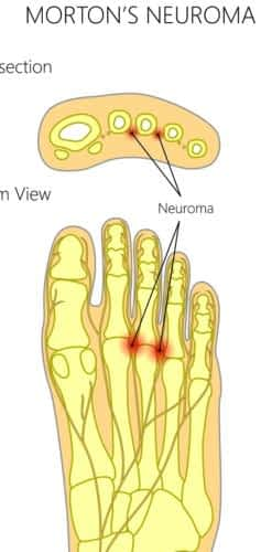 Ball of the foot pain Morton's Neuroma