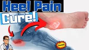 Heel Pain Foot Doctors