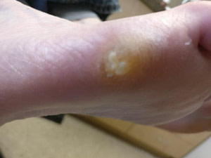 wart callus to the bottom of the foot verruca