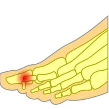 Mallet toe pain 2nd toe joint