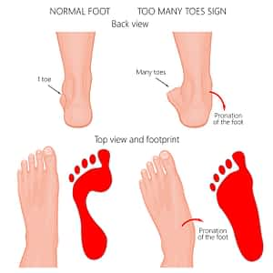 Too many toes sign over pronation