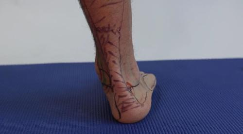 Overpronation of foot and ankle