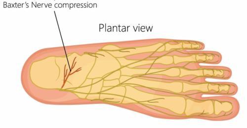Heel nerve pain