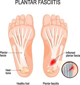 plantar fasciitis injury pain