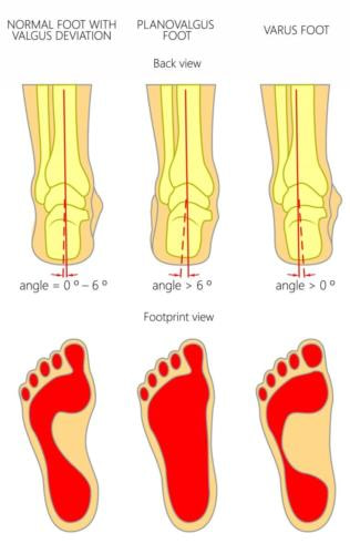 Pronated foot vs supinated foot heel pain