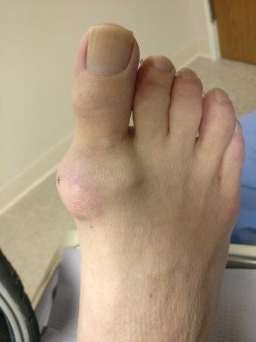 gout on top of the foot, toe foot heel ankle knee
