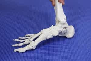 Heel pain inflammation: causes, symptoms & best treatment