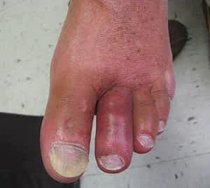 Gout of the big toe joint and the 2nd toe joint