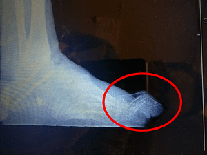 Hammer toe of the 2nd toe side view
