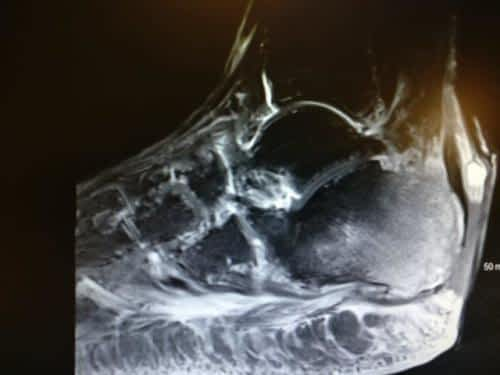osteomyelitis of the heel with open wound achilles rupture