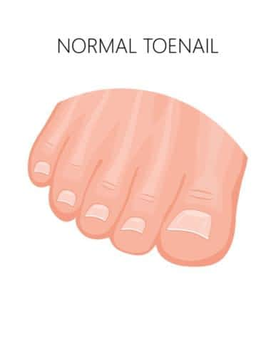Ingrown toenails normal toenail