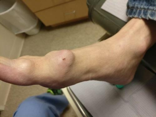chronic goutaceous tophi in the big toe joint