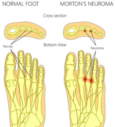 Morton's Neuroma ball of the foot pain treatment