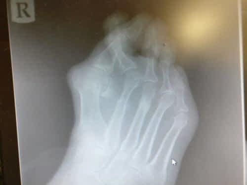 Can Bunions be Reversed Without Surgery?