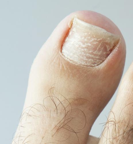 White nails: Superficial white onychomycosis, white spots, white marks & white toenail fungus.